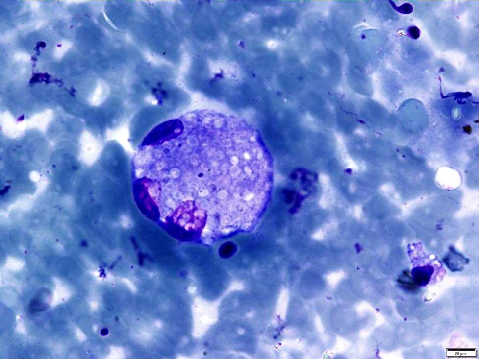 Histoplasmosis (intracellular)